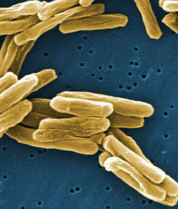 Most people infected with the tuberculosis bacillus, or germ, don't become ill or even know they are infected, because the germ can lie dormant in a person's lungs for many years. (FILE PHOTO)