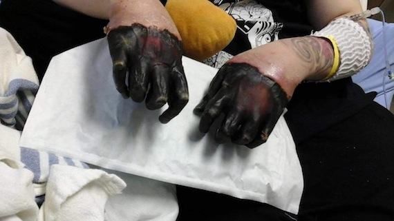 Romeo Tucci shows what his black, frostbitten hands look like March 27, in a photo shared with Nunatsiaq News by his sister, Christina Tucci. (PHOTO COURTESY OF C. TUCCI)