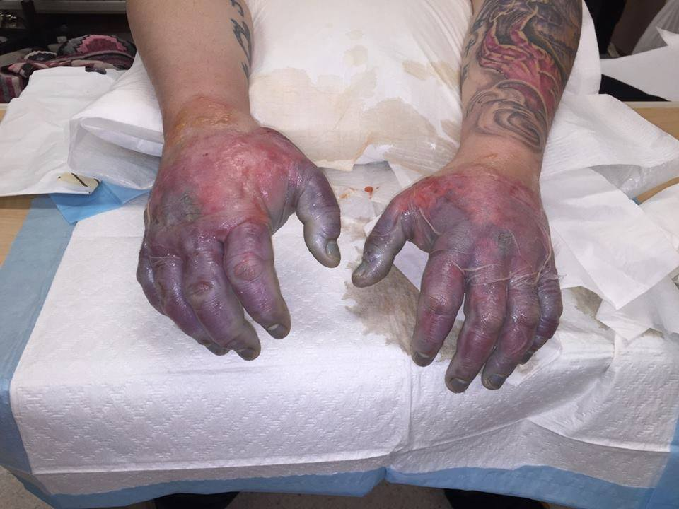 This how Romeo Tucci's hands looked when he first arrived at the health centre in Cambridge Bay. (PHOTO COURTESY OF C. TUCCI)