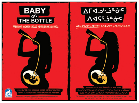 These posters from the Government of Nunavut's 2014 FASD prevention program received a mixed reception due the graphic images. (FILE PHOTO)